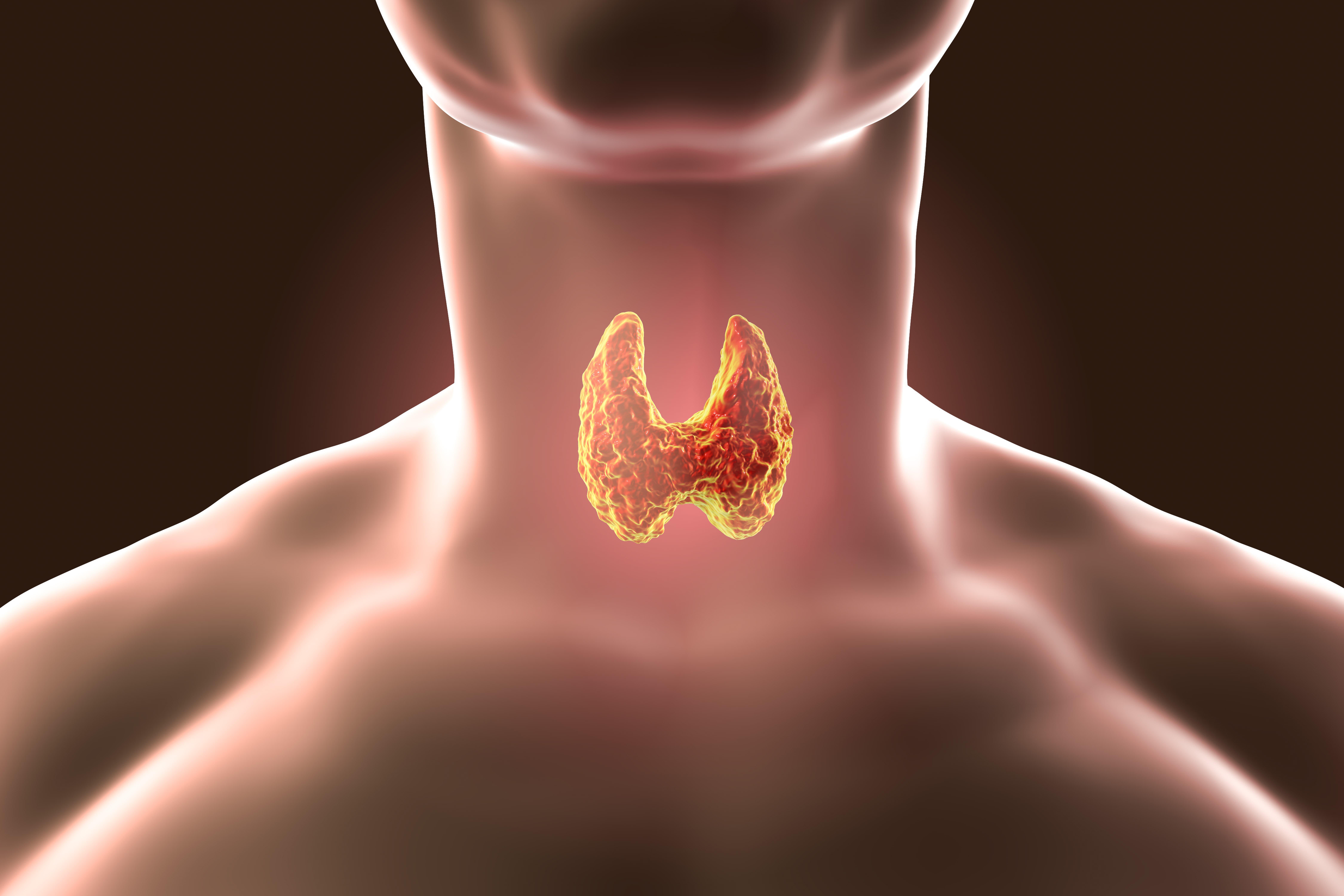 dietas para adelgazar para personas con hipotiroidismo