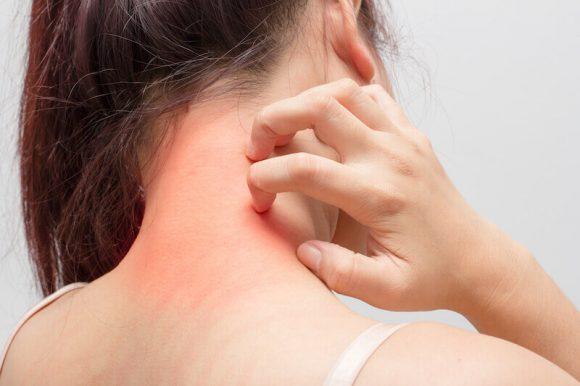 Dieta para la piel atópica o dermatitis atópica